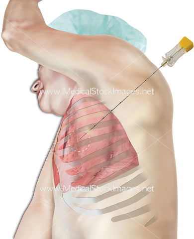 Biopsy Needle in Lung