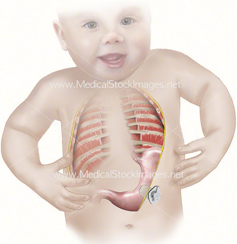 Gastrostomy Procedure Infant