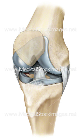 Knee Joint with Damaged Cartilage