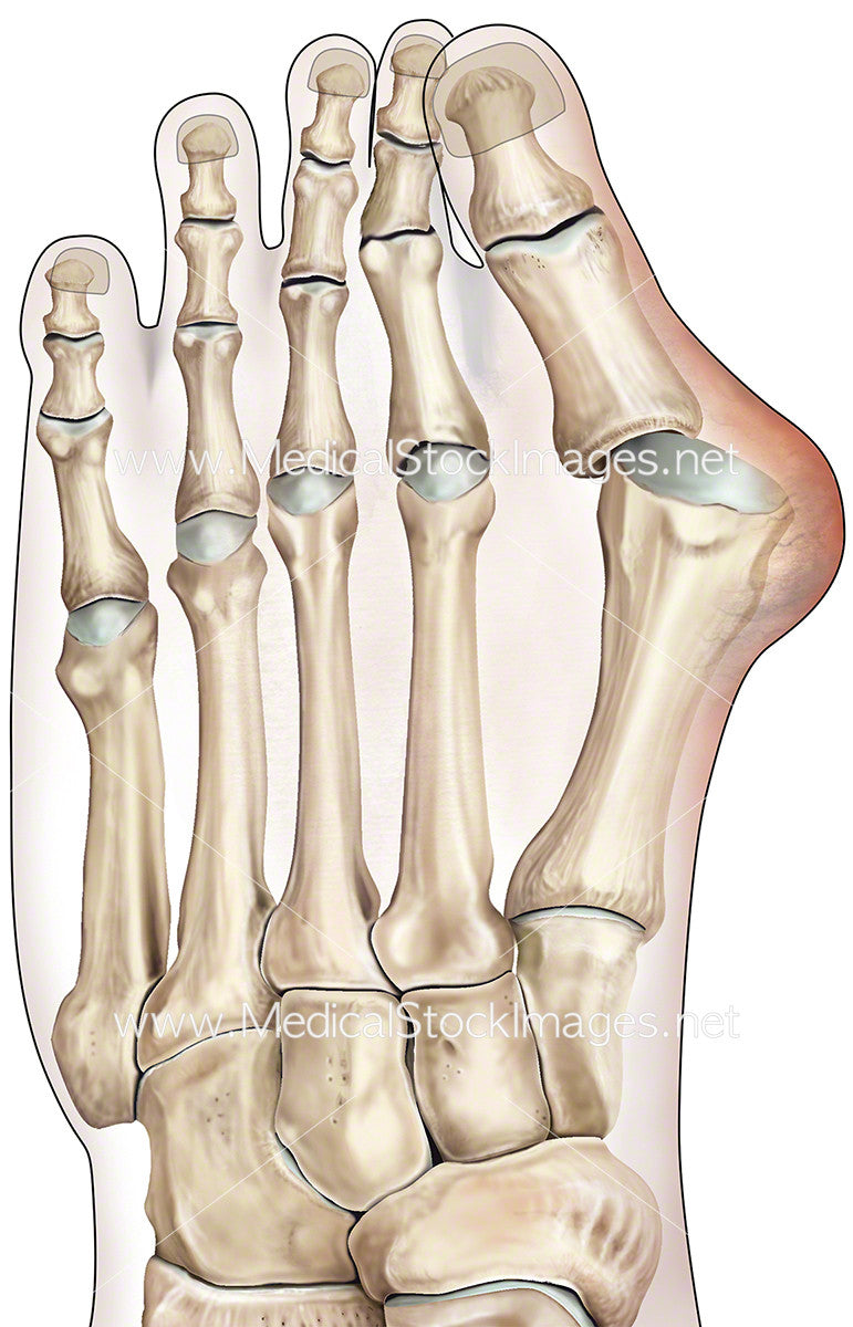 Bunion or Hallux Vagus – Medical Stock Images Company