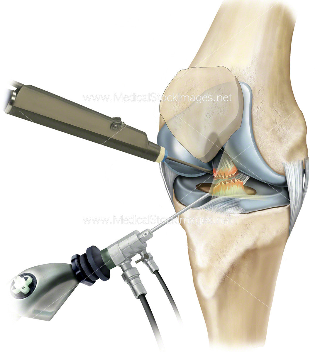 Arthroscopy of the Knee Joint – Medical Stock Images Company