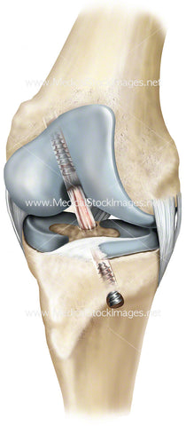 Surgical Repair of Cruciate Ligament