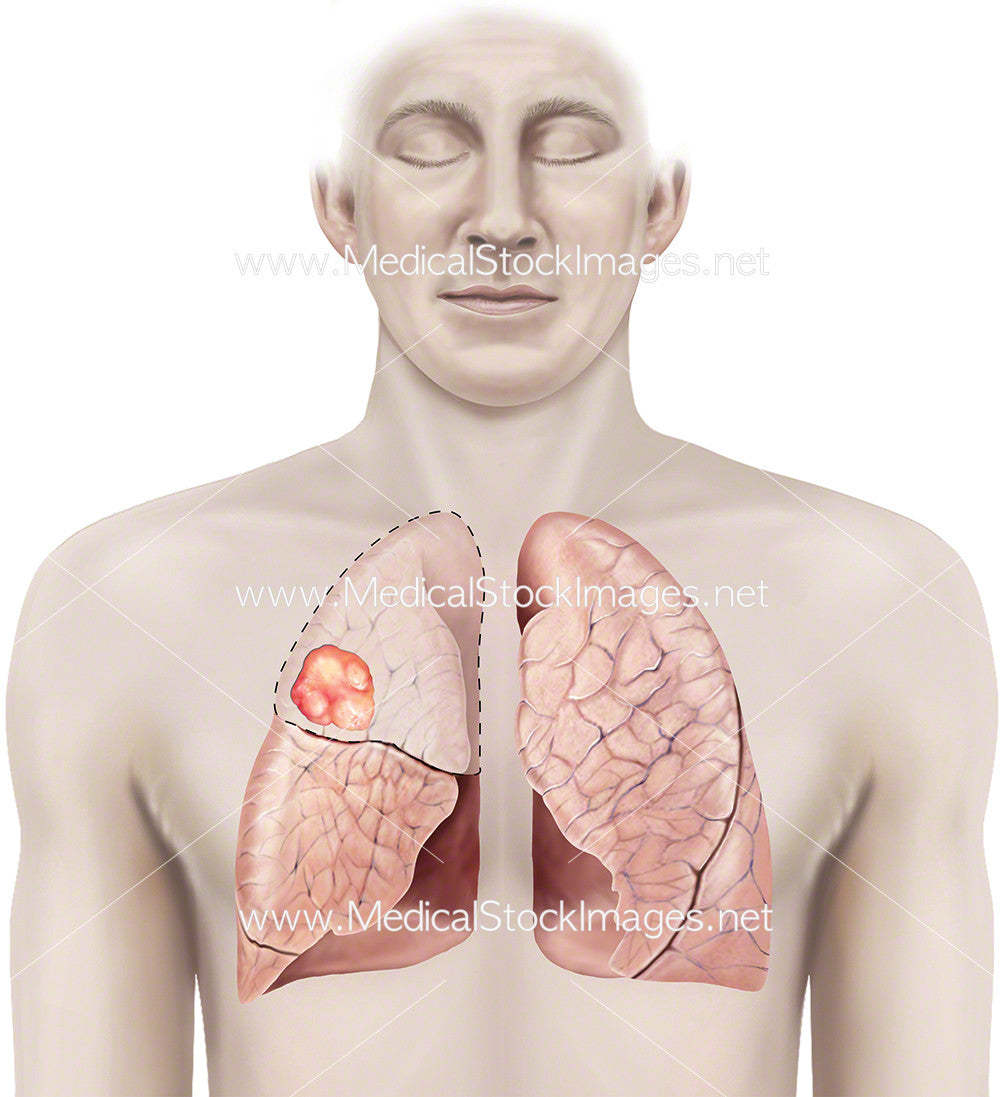 Tumour in the Right Lung – Medical Stock Images Company