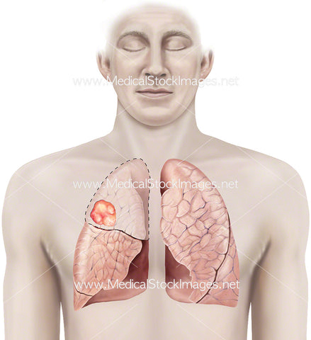 Tumour in the Right Lung