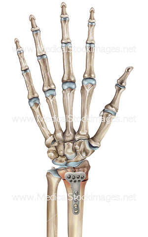 Distal Radius Fracture with Plate Repair