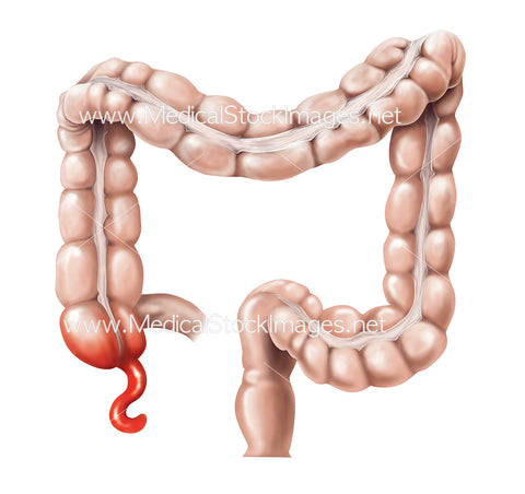 Bowel with Inflamed Appendix