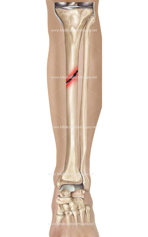 Tibia Fracture with Leg