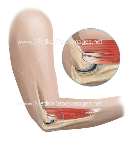 Tennis Elbow with Muscle Tears