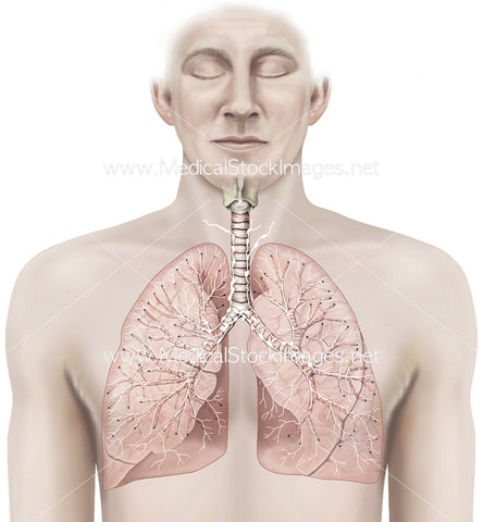 Thoracic Lymph Nodes and Lungs
