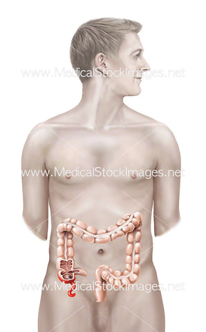 Male Figure with Inflamed Appendix