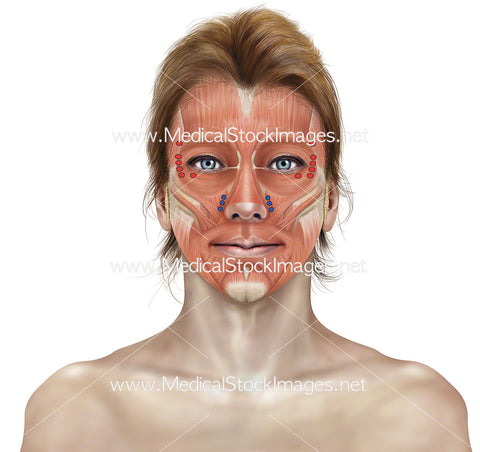 Botox Injections Points