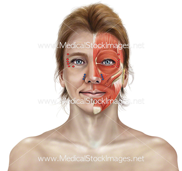 botox injection points of facial muscle anatomy and skin medical stock images company. Black Bedroom Furniture Sets. Home Design Ideas