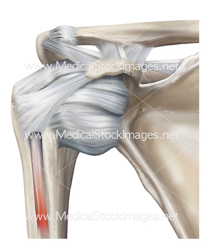 Shoulder Glenohumeral Joint Ligaments