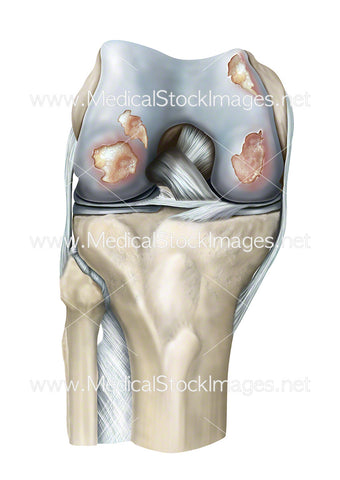 Rheumatoid Arthritis of the Knee