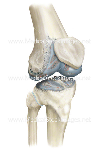 Arthritis in the Knee Joint