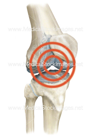 Pain Radiating from Knee with Arthritis