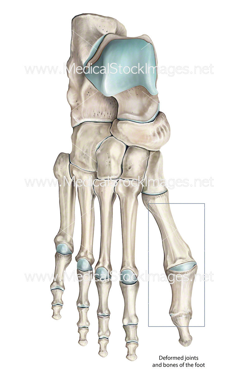 Deformed Toe Bones and Joints – Medical Stock Images Company