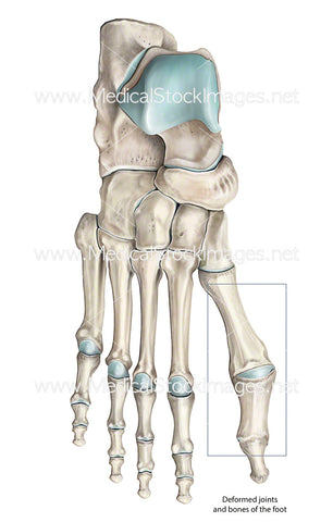 Deformed Toe Bones and Joints