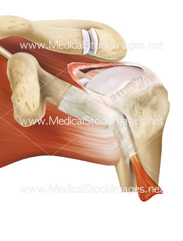 Massive Tear in the Supraspinatus Tendon