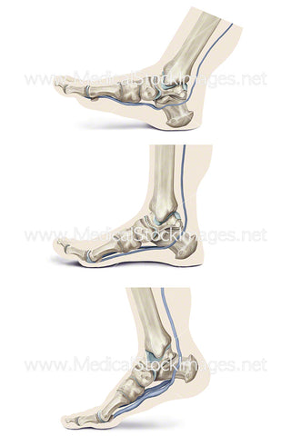 Plantar Pump Action When Walking