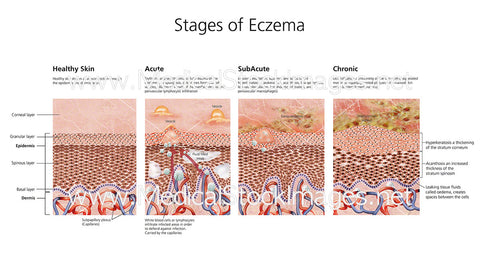 Stages of Eczema - Labelled
