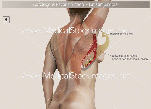 Autologous Reconstruction – Surgery B - Labelled