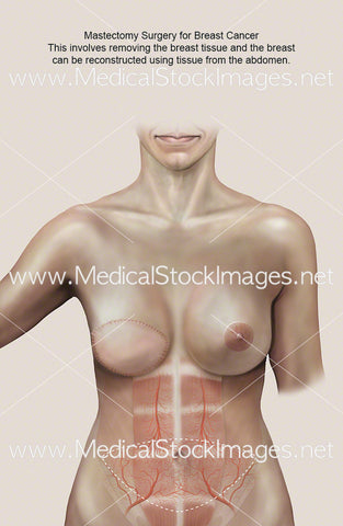 Mastectomy Scar After Surgery (TRAM FLAP)