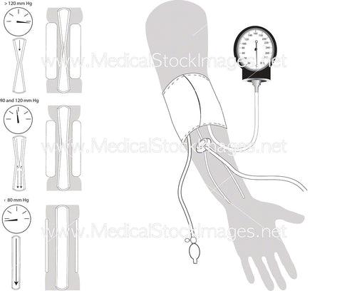 Arterial or Blood Pressure Measurement