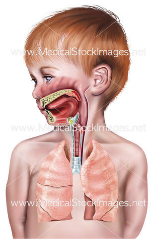 Upper Airway of Young Male Child