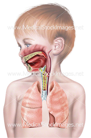 Upper Airway of Young Child with Mucus in the Larynx