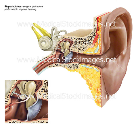Stapedectomy of the Stapes of the Ear - Labelled