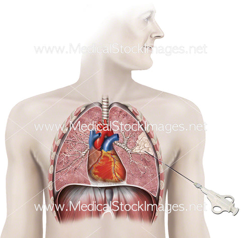 Procedure for Lung Biopsy