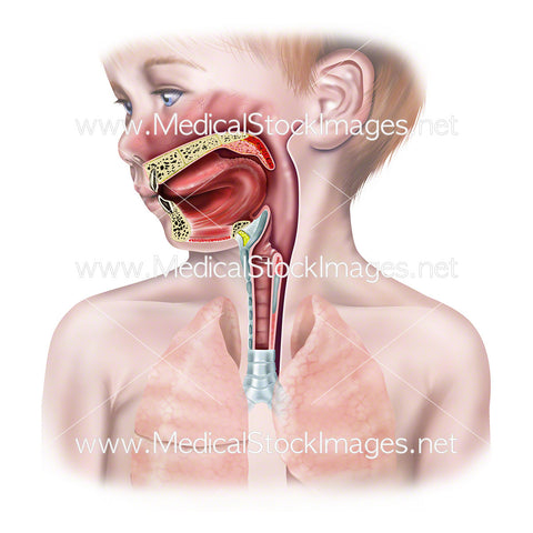 Healthy Upper Airway of Child