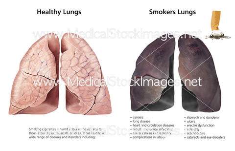 Healthy Lungs and Smoker's Lungs - Labelled