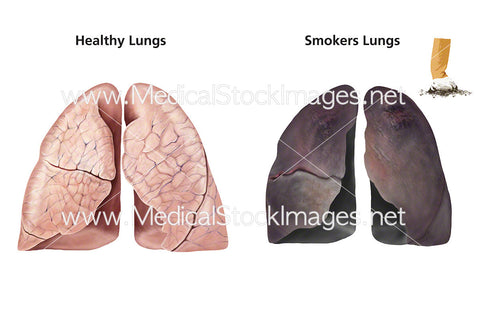 Healthy Lungs and Smoker's Lungs