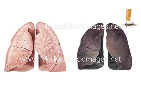 Healthy Lungs and Smoker's Lungs – No Labels