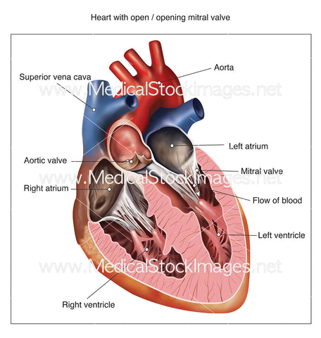 Heart with Open Mitral Valve