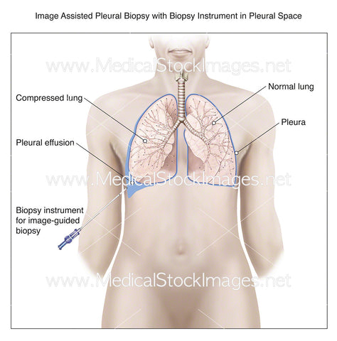Image Assisted Pleural Biopsy with Instrument in Pleural Space