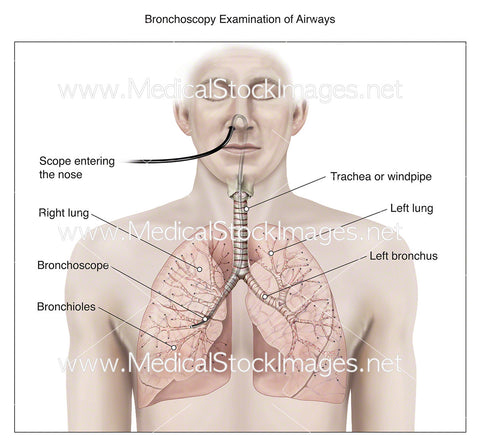 Bronchoscopy Examination of Airways