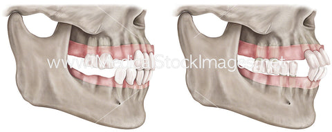 Dental Illustration Depicting Tooth Loss