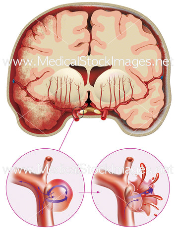Circulatory. Ruptured aneurysm in brain, saccular aneurysm