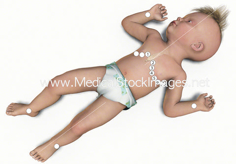 ECG electrode location on an infant