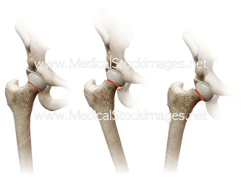 Epiphysis Fracture of the Hip