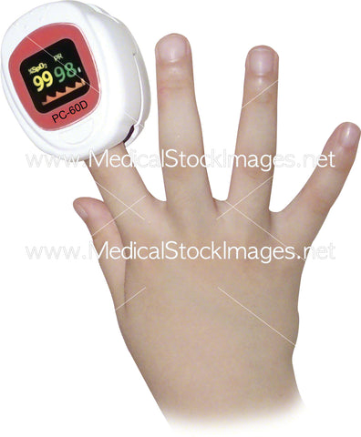 A pulse oximeter for a baby