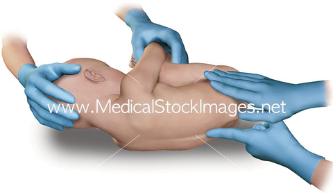 Positioning a child patient ready for lumbar puncture procedure