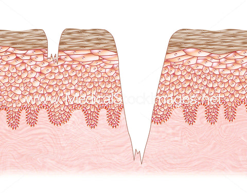 Abrasion Formation of the Skin