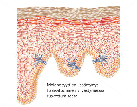 Increased Branching of Melanocytes in Delayed Tanning - Labelled in Finnish