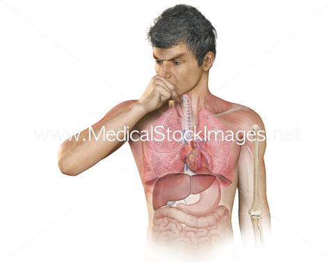 Anatomy of the thorax with person coughing with outer signs of pneumonia