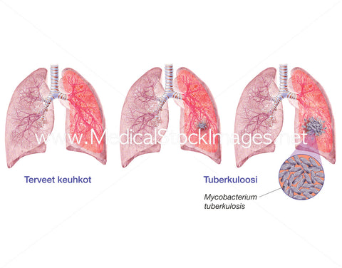Tuberculosis Labelled in Finnish