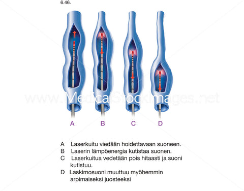 Varicosis and Laser Treatment Stages - Labelled in Finnish